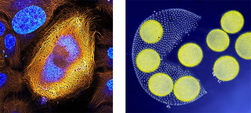 Wissenschaft trifft Kunst: Bilder aus dem Mikroskop – die Gewinner der Nikon Small World 2017